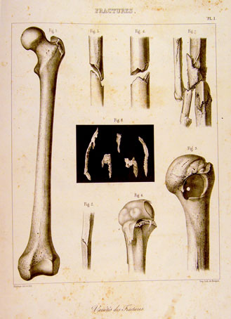 Lámina del Atlas de Malgaigne